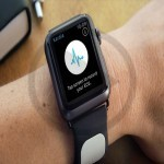 IOS Heart Monitoring App By Kardia For iWatch Gets Approval From Gundrota